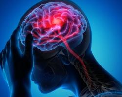 La Real Academia de Medicina y Cirugia de la Regiónd e Murcia le invita a los actos que se celebrarán en commemoración por la Semana Mundial del Cerebro